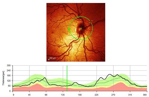 OCT glaucoma scan