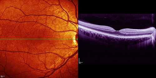 OCT scan of the macula
